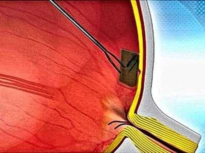 Minúscula retina biónica restablecerá la vista a los ciegos